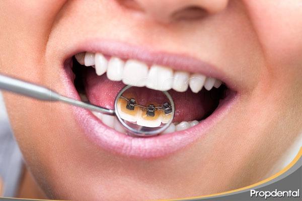 técnicas estéticas de ortodoncia
