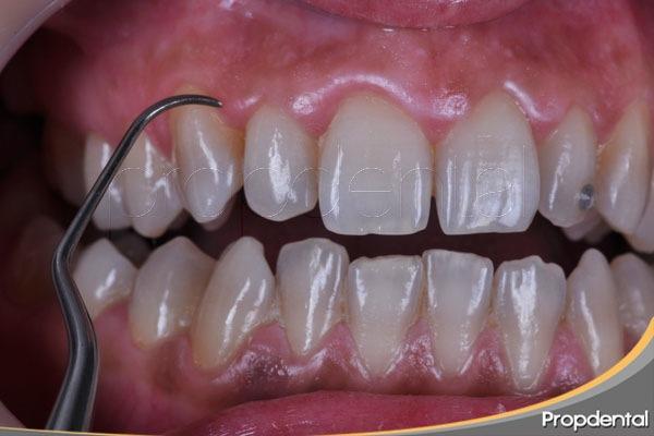 todo cirugia periodontal