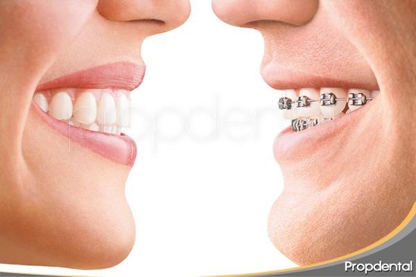 ventajas inconvenientes ortodoncia removible