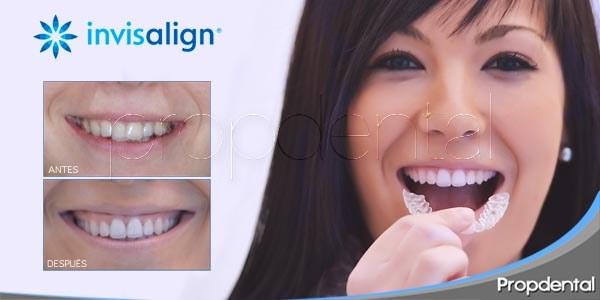 5 pasos del proceso de ortodoncia