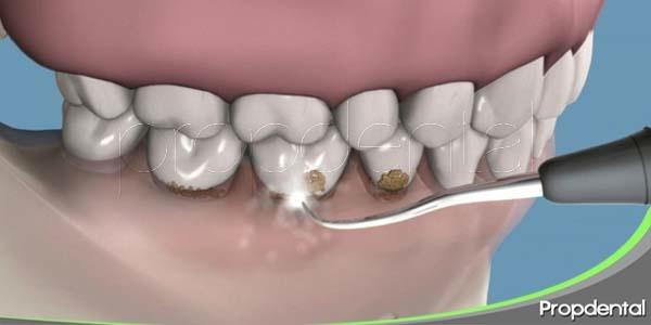 9 razones para programar una limpieza dental