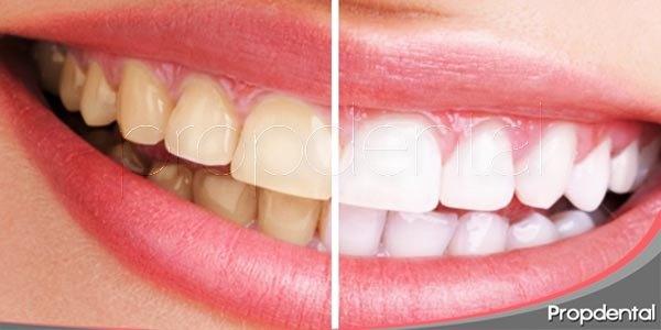 blanqueamiento dental: historia, opciones y mantenimiento