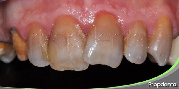 causas de las manchas en el esmalte dental