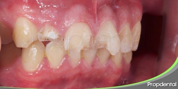 como actuar ante la pérdida de un diente por un traumatismo