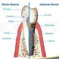 dientes e implantes dentales similares, pero diferentes