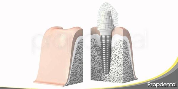 diferencias de un implante respecto a un diente natural