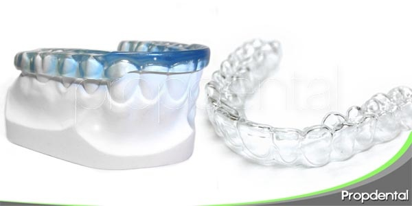 diferentes tipos de férulas dentales