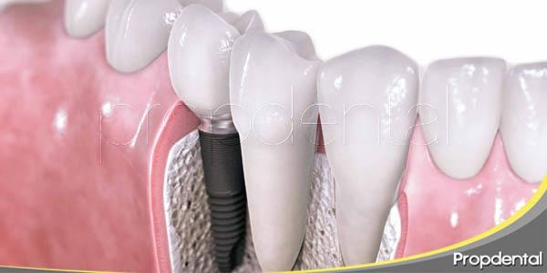 la longevidad de dientes naturales e implantes dentales