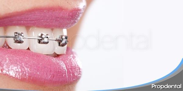 la ortodoncia como solución estética y funcional