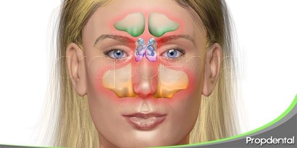 la rinosinusitis odontológica