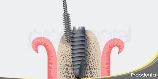 los implantes dentales saludables y su mantenimiento
