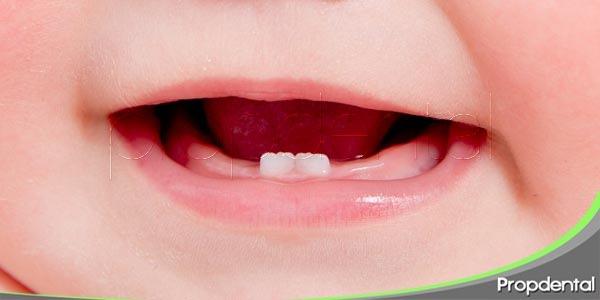 los problemas de la erupción dental