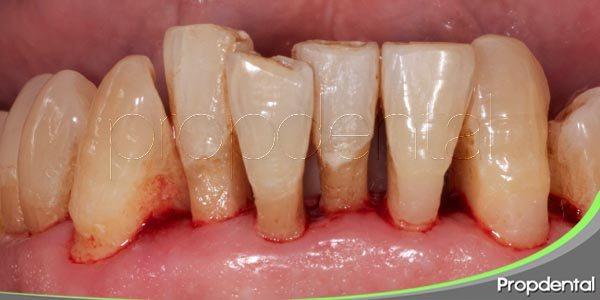 los problemas de salud que causa una mala higiene oral