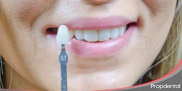 odontología estética los tratamientos milagrosos I