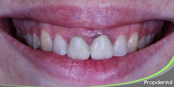 pacientes idóneos para someterse a un alargamiento de corona dental