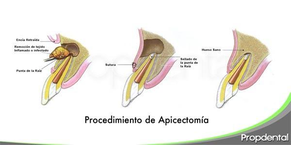 particularidades de la apicectomía