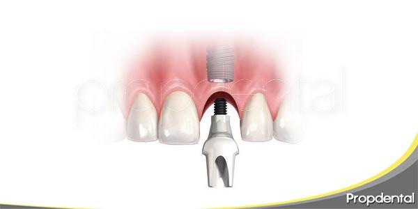 particularidades de los implantes inmediatos