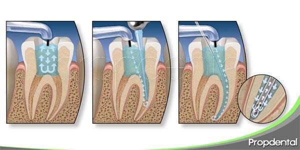 pasos de un proceso de endodoncia