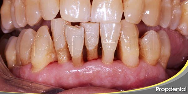 periodontitis y peri-implantitis, ¿cuál es la diferencia?