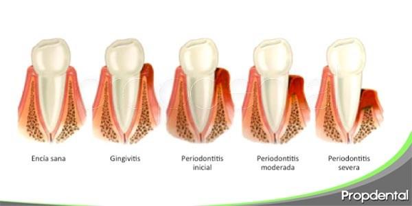 preguntas frecuentes sobre las enfermedades periodontales