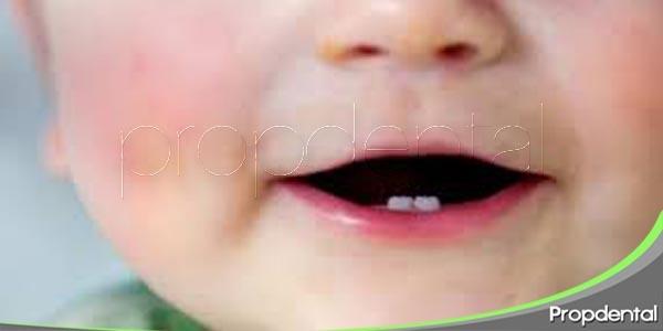 preocupación por la dentición de los bebés