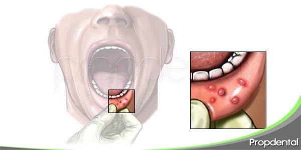 principales causas de las aftas bucales