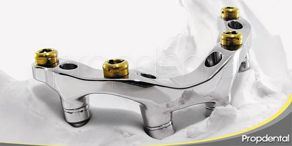 ¿problemas con los implantes dentales?