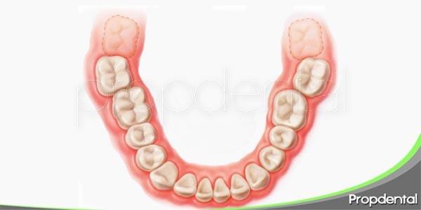problemas orales causantes por las muelas del juicio