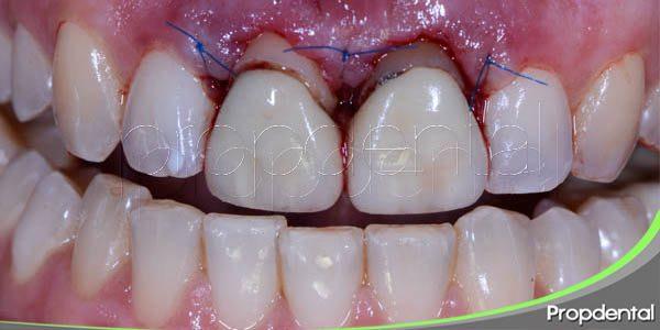 procedimiento del alargamiento de la corona dental