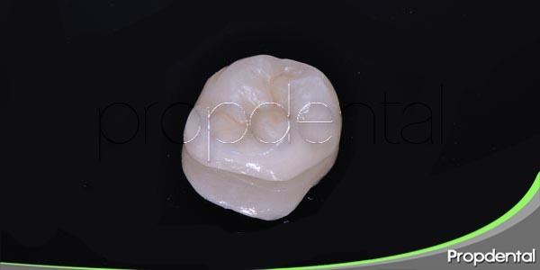 variedades de coronas dentales