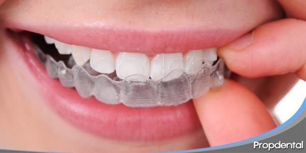 ventajas de la técnica invisalign en ortodoncia