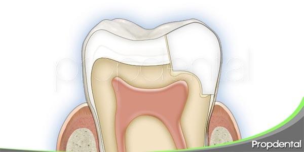 ventajas e inconvenientes de las incrustaciones dentales