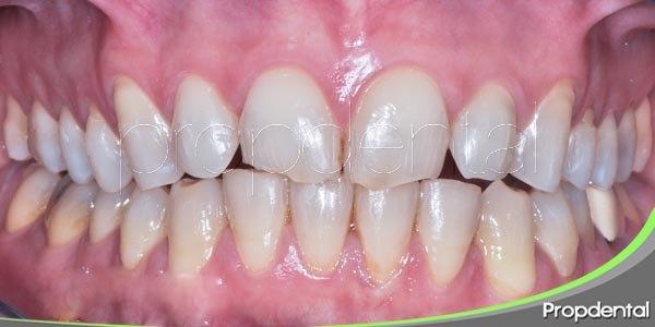 10 hábitos habituales que pueden danar nuestros dientes