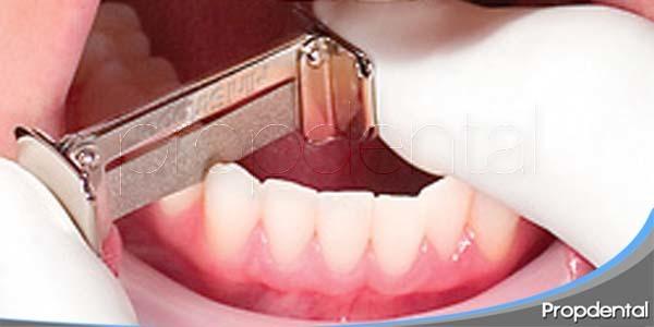 alineación de los dientes mediante stripping dental