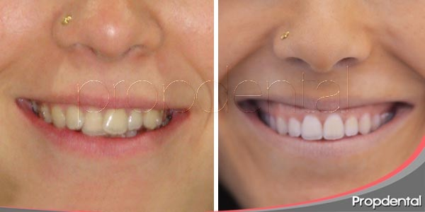 cambios dentales extremos sin medidas extremas
