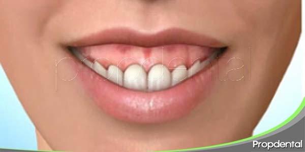 causas de la sonrisa gingival
