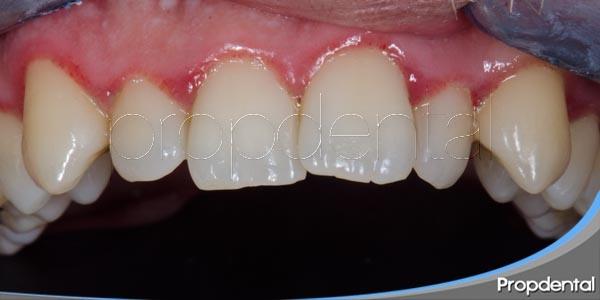 causas del apiñamiento dental