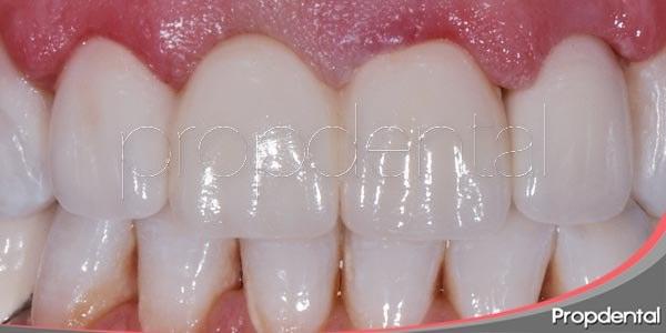 cementado de las carillas dentales