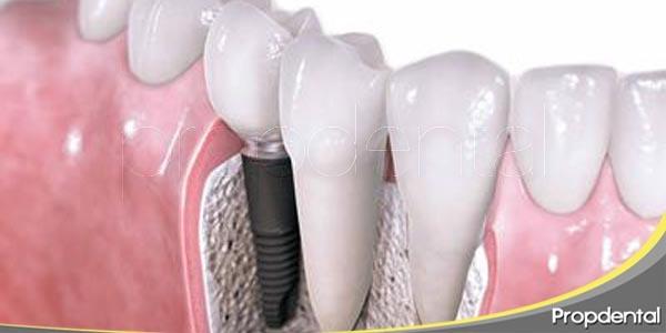 colocación del implante dental en cinco pasos