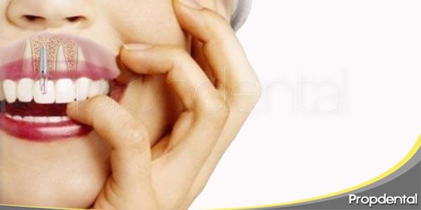 como alargar la duración de un implante dental