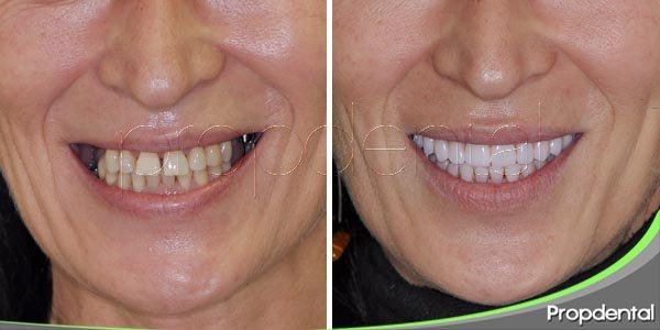 completa tu sonrisa con implantes dentales