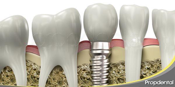 complicaciones habituales de los implantes dentales