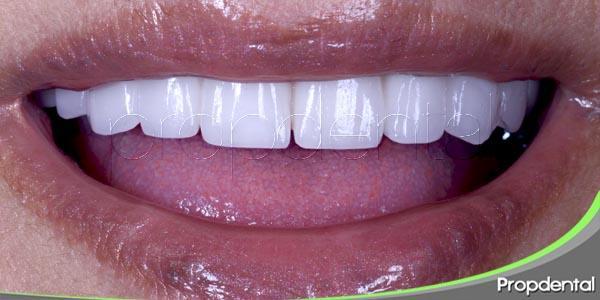 consejos para pacientes con dentaduras nuevas