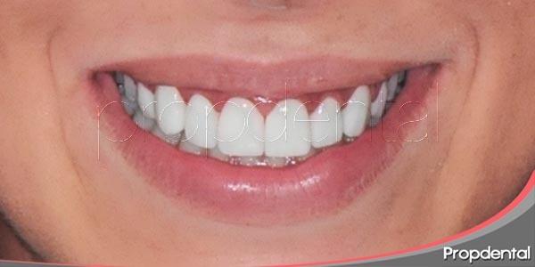 Una bonita sonrisa - 5 4