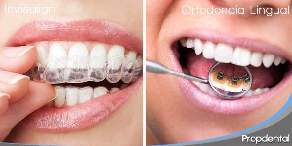 diferencias entre invisalign y ortodoncia lingual