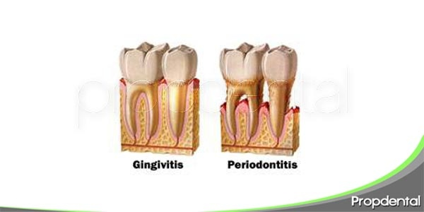 diferencias entre la gingivitis y periodontitis