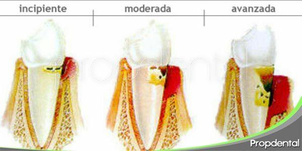 diferentes tipos de periodontitis