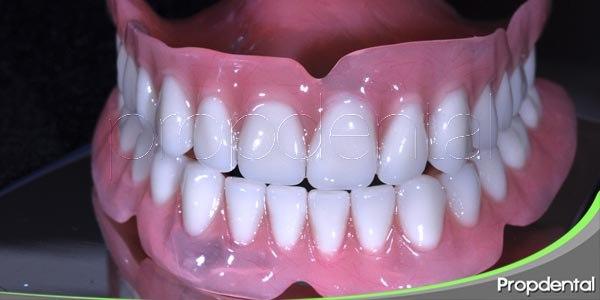 diferentes tipos de prótesis dentales