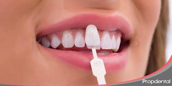 diferentes variedades de blanqueamiento dental
