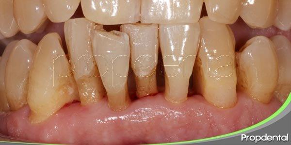 el vínculo entre enfermedad periodontal y salud del corazón
